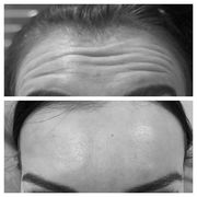 Anti-Wrinkle Treatment Watford